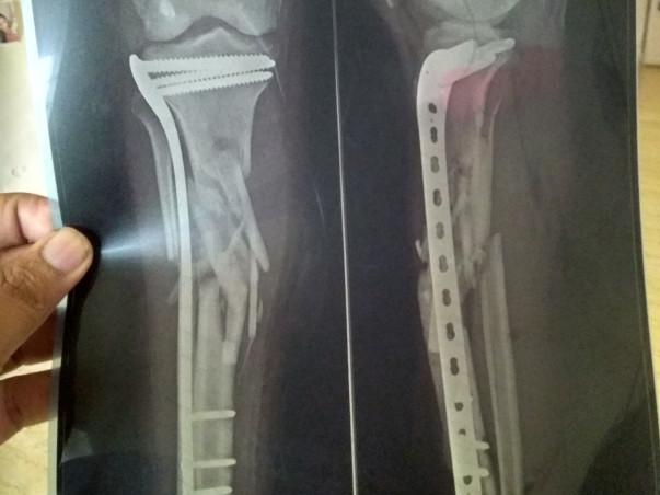 Help Me Undergo Bone Grafting