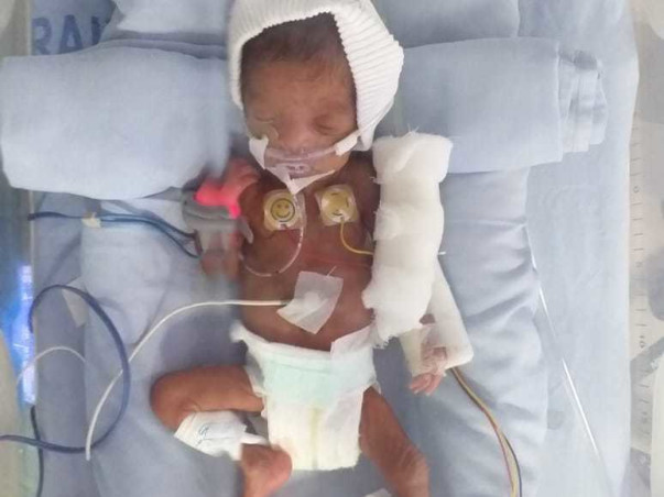 Help Twins Of Anand Recover