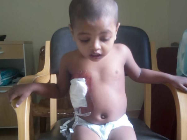 Help My Daughter Suffering From Thalassemia Major
