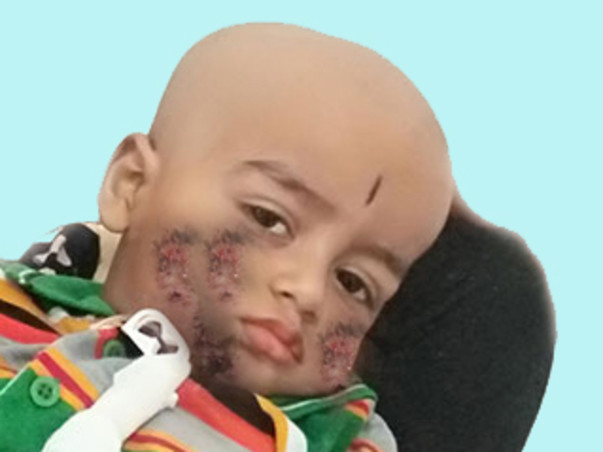 """Help My Child Who Fight With His Disease To """"Alive"""""""