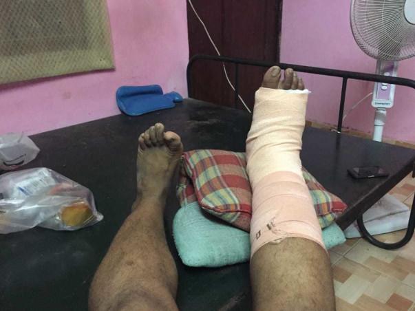 Help Me Complete My Leg Surgery