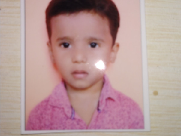 Help Baby Sumant For Cochlear Implant