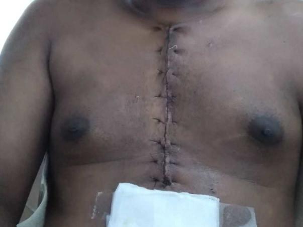 Help Anand Undergo An Open Heart surgery