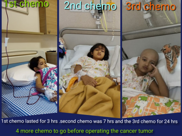 Help my 4yr Oishee battle cancer bravely, she wants to live not die.