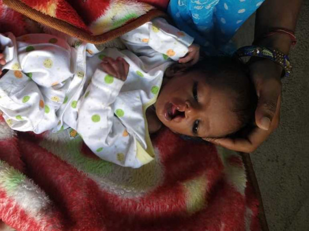 Help Little Tanvi, Kindly Donate And Help