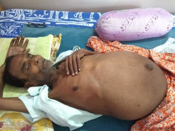Help My Father Undergo A Liver Transplant
