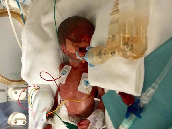 Help My New Born Niece Survive