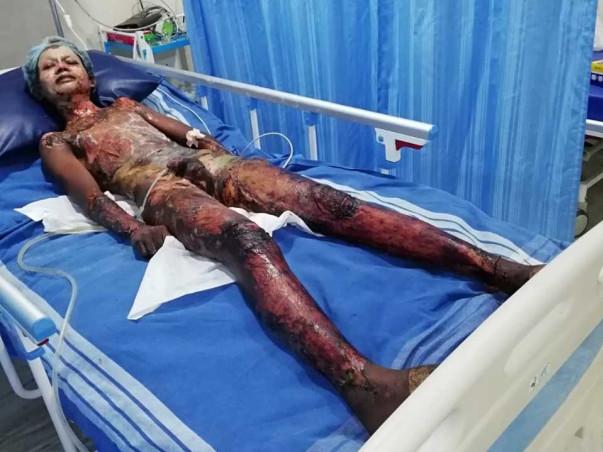 Help Shaik Recover From Serious Burns