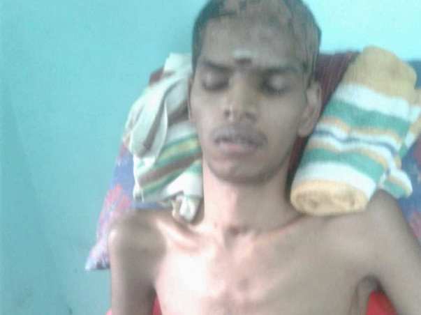 Help Vivek Recover From An Accident