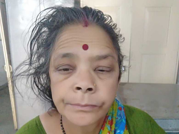 Help Bimla Undergo Heart And Kidney Treatment