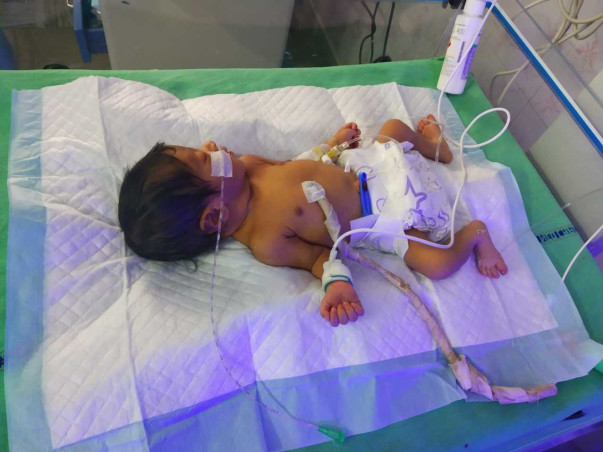 Support Me to Save My 6 Days Old Daughter, Who is in ICU.