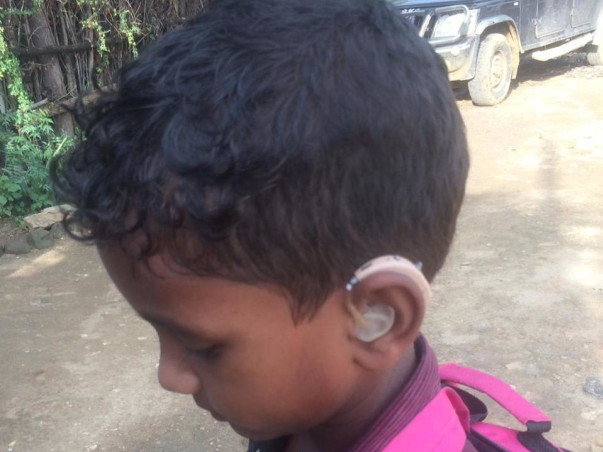 Help Siril To Get Ear Surgery