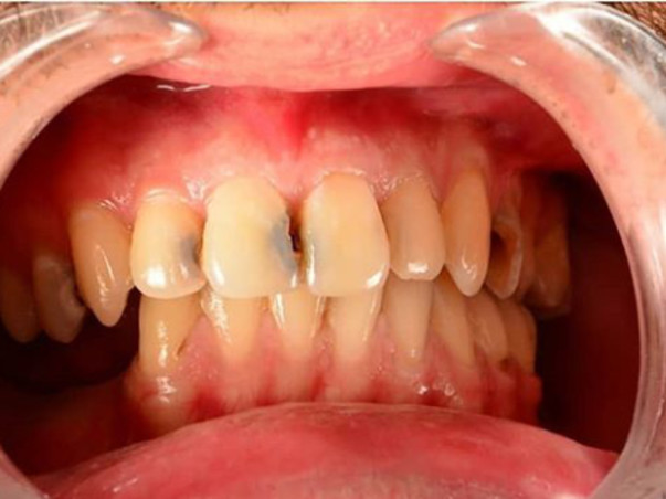 Help Me Raise Funds For My Tooth Surgery