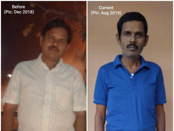 Help Ramesh Undergo Liver Transplantation