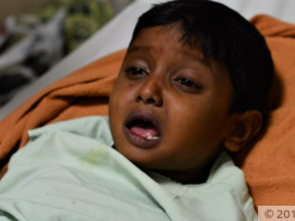 Anirudh needs to undergo a liver transplant surgery to survive