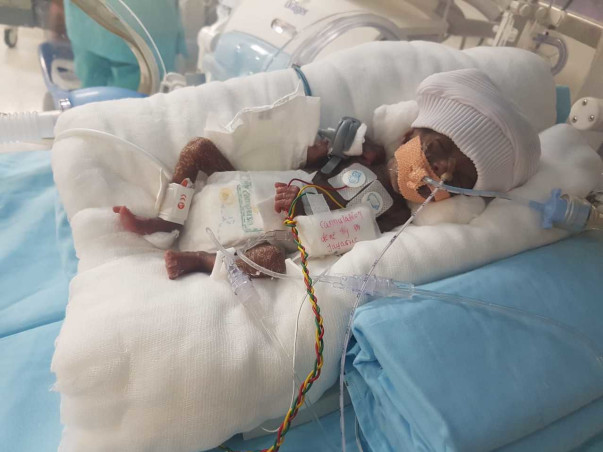 Help Baby Of Sowjanya To Survive