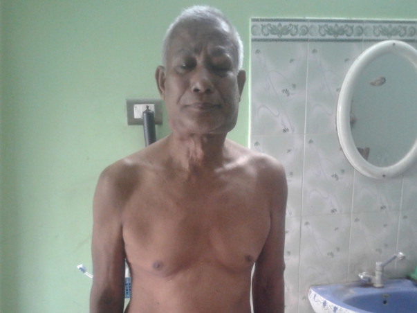 Support Singharam Recover From Lymphoma, Cancer