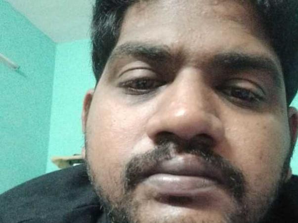 Help Me Undergo Jaw Surgery
