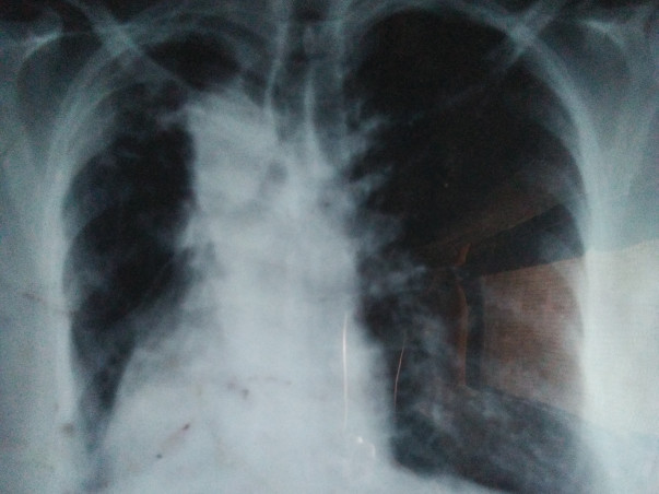 Help Rani .she lost her left lung due to chronic lung disease