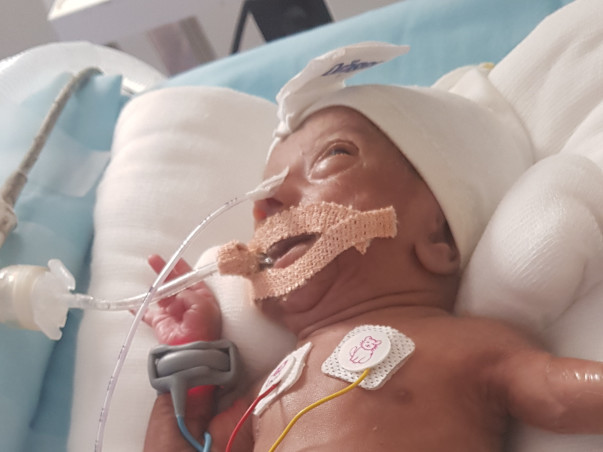 Help Baby Of Shalini: Premature Birth