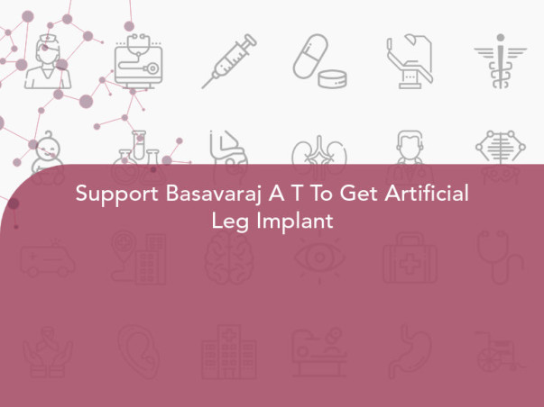 Support Basavaraj A T To Get Artificial Leg Implant