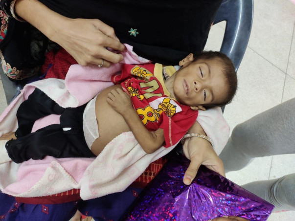 1 Year Old Khushi  Needs Your Help Fight Bone Marrow Transplant