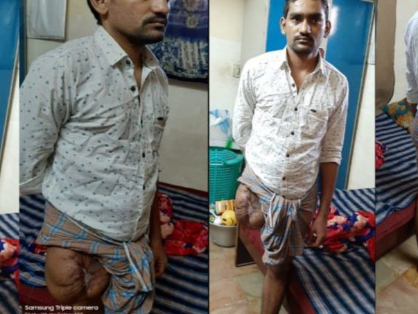 Please help Amzath to undergo a knee prosthetic surgery