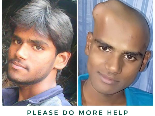 My Friend Arun Is Struggling With Brain Tumor, Help Him