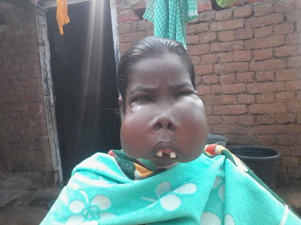 Help Shanti Tirkey Fight Oral Cancer