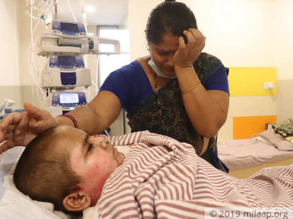 Severely Electrocuted 7 Years Old Dhawal Need Your Help To Recover