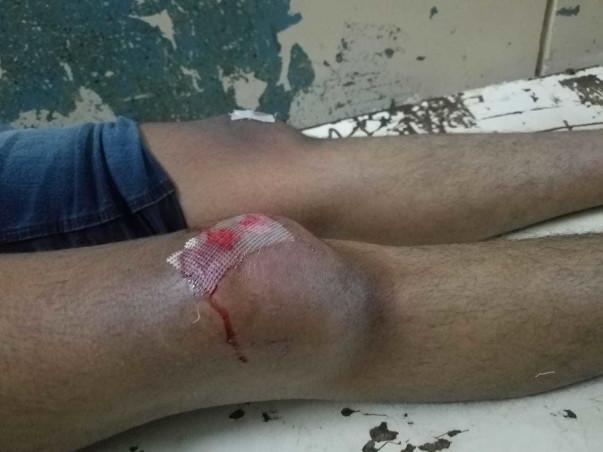 Help Junaid Jaweed For Knee Repair Surgery