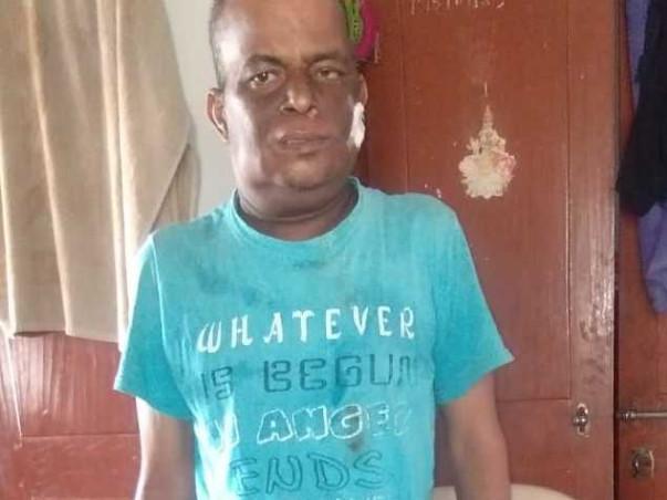 44 Years Old Achi Babu Gurubili Needs Your Help Fight Cancer