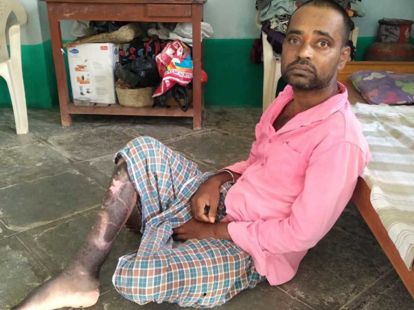 Support Raju recover from Road traffic accident with polytrauma