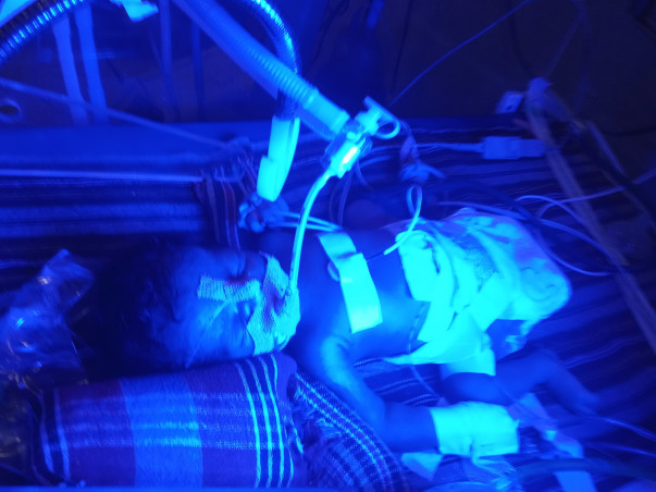 New Born Baby Girl She Is Suffering From Brain Infection, So Plz Help