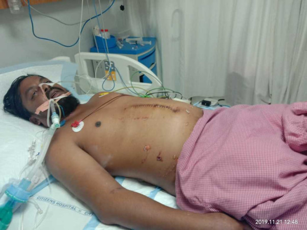 Support Dileep Recover From Septic Shock