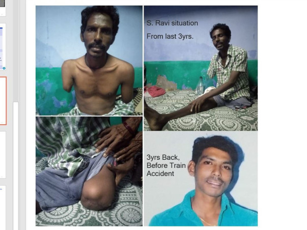 Support S Ravi To Recover From Accident