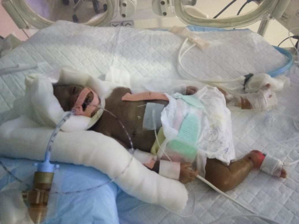 28 Days Old Baby of Ranjana Needs Your Help .