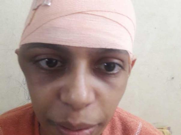 32 Years Old  Jumana Needs Your Help Fight Brain Haemorrhage