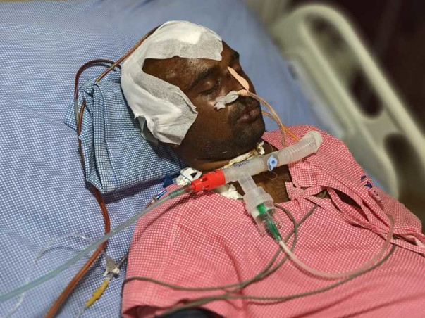 25 Years Old T Suresh Needs Your Help To Recover From Head Injury