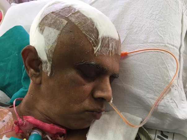 58 Years Old Chandra Shekar Needs Your Help Fight Middle Cerebral Artery (Mca)