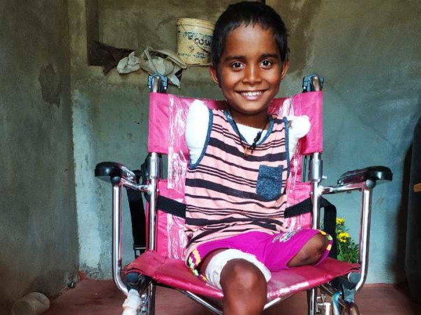 Support Madhu Kumar Recover From Electric Shock Injuries