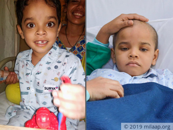 6 Years Old Aarush Anil Khot  Needs Your Help Fight Blood Cancer