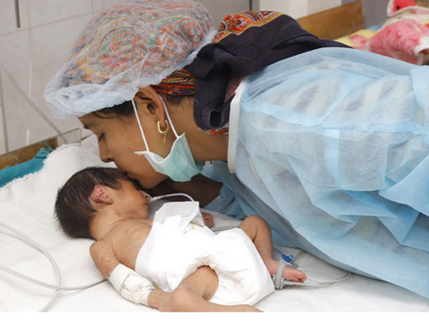 10 Days Old Baby Of Kalpana Needs Your Help Fight Liver Failure