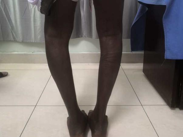 Help K Kamaraju To Walk Without Pain