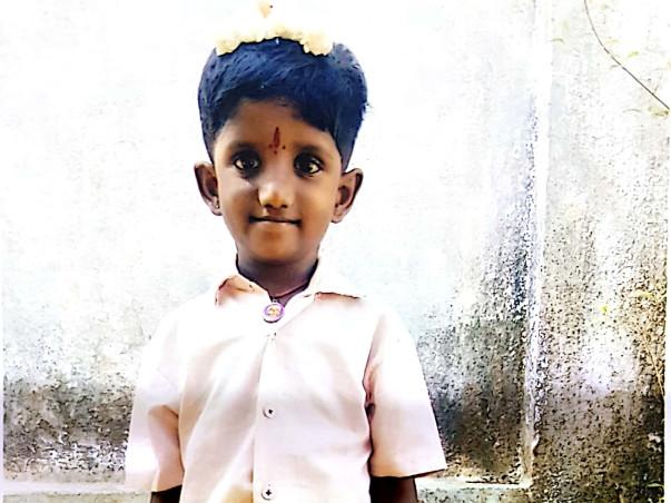 Save 9 Yrs Santhana Karthicka From Pulmonary Atresia