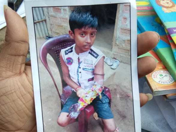 Help 7 Years Old Ramdas  To Undergo Plastic Surgery