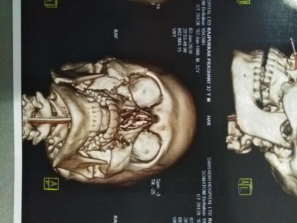32 years old Prashant Rajpurkar needelp fight Multiple Skull Fractures