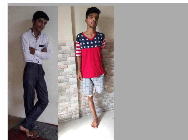 Support 22 yrs old Nikhil Recover from a tragic accident -lost his leg