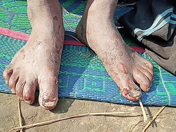 Support Sarvan Kumar Choudhry Recover From Skin Disease