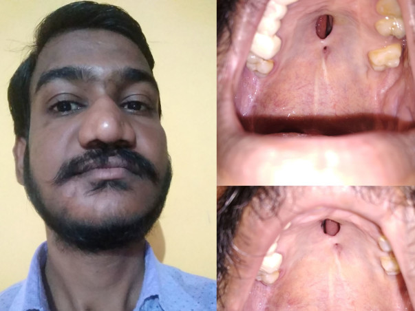 Help Me To Cure From Hole in Palate